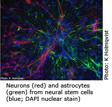 photo: microscope image of neurons and astrocytes