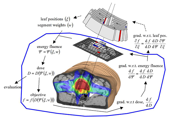 Schematic illustration of the radiotherapy optimization process.